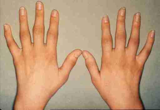 thumb science