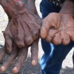 मरने पर बच्चे और महिलाओं की उंगलियां काटकर दी जाती है श्रद्धांजलि